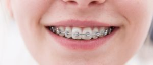 kids orthodontics near me