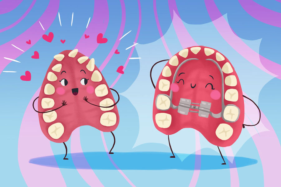 Cartoon of a before and after palatal expander.